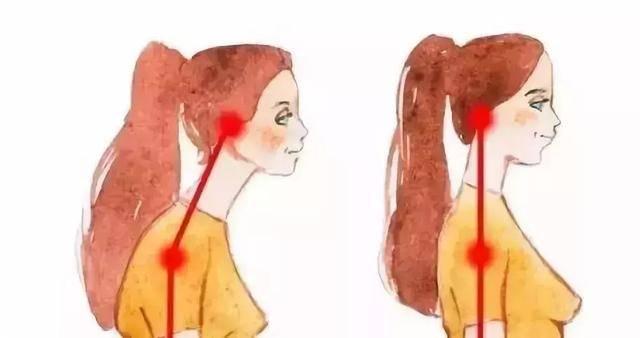 如何改善脖子前倾问题?几个动作远离乌龟颈,改善自身体态! 减脂食谱 第6张
