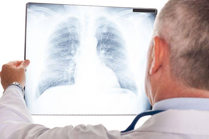 体检不做这个筛查,得了肺癌都不知道,医生提醒:别漏检 营养补剂 第2张