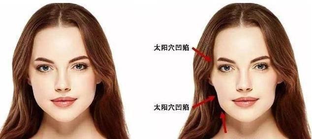 """正畸医生3招教你避开""""牙套脸""""!"""