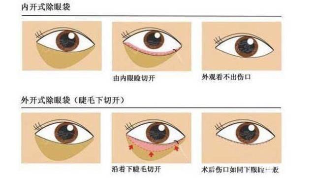 水剥离祛眼袋 医美科普(图1)