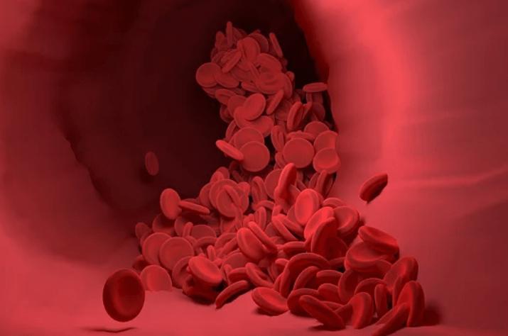 吃黄豆能调节血脂,但有3个误区要注意避免