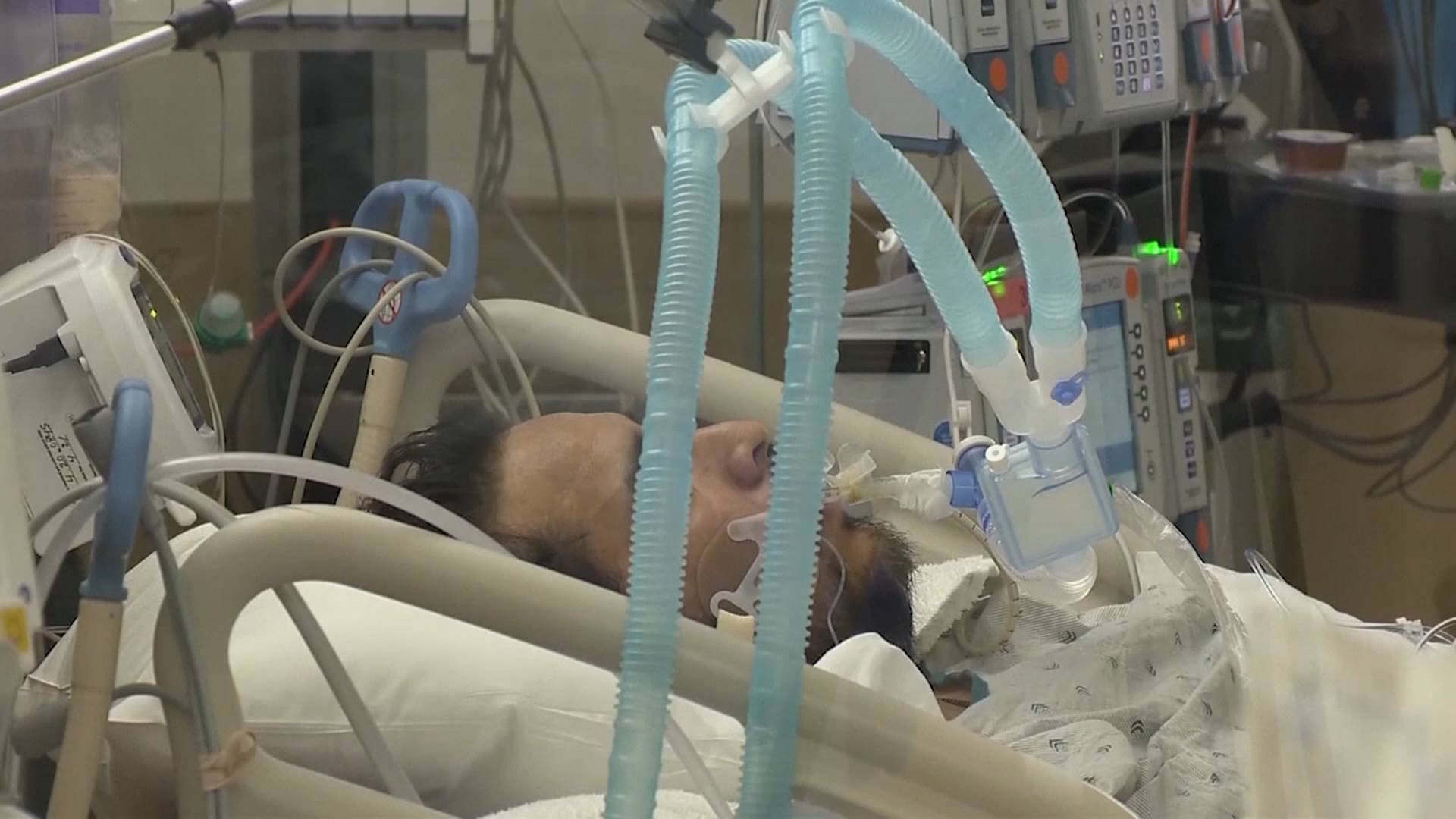 新冠肺炎将成为2020年美国人口第三大死亡原因