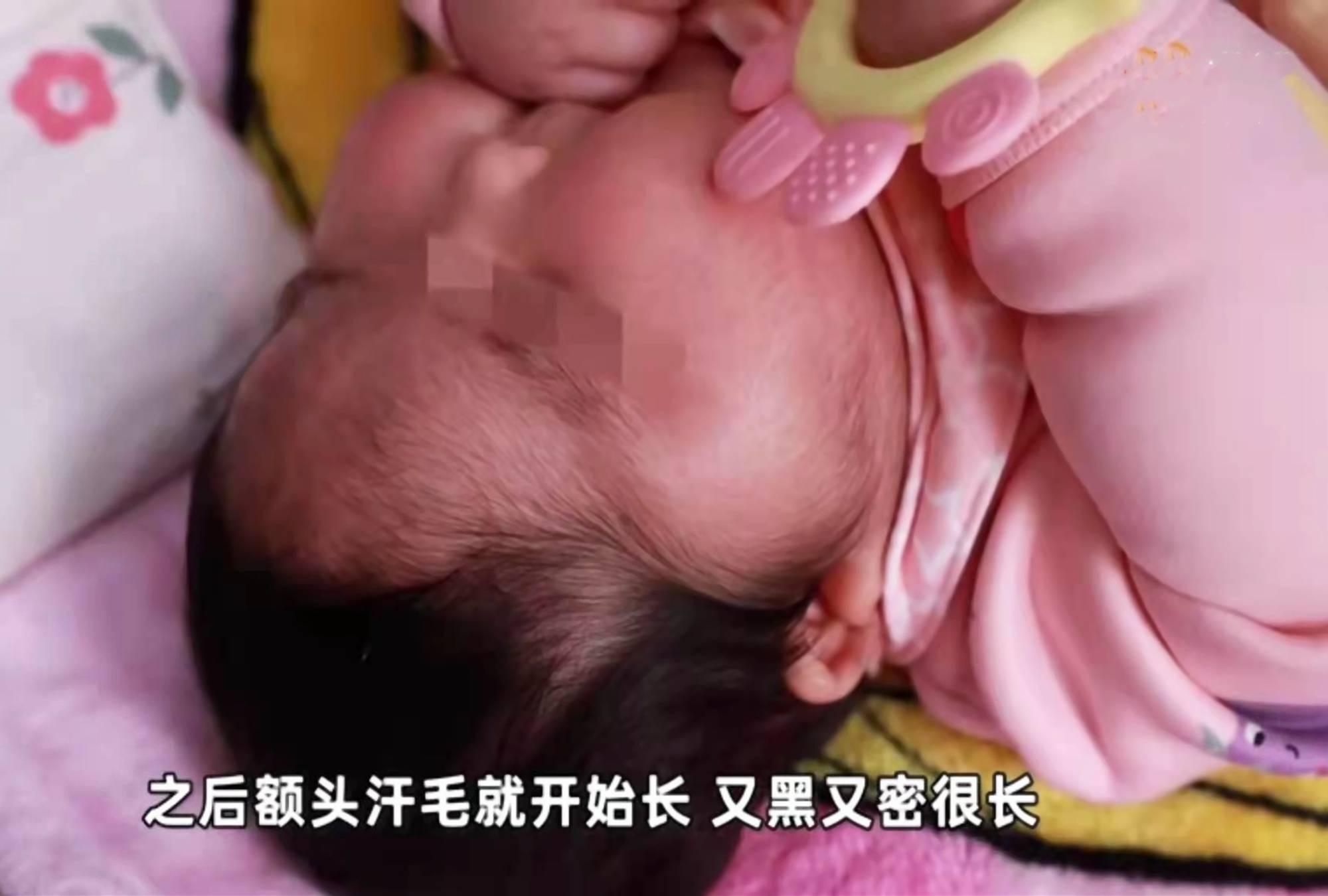 """新生儿两个月变""""大头宝宝"""",背后""""凶手""""竟是婴儿霜"""