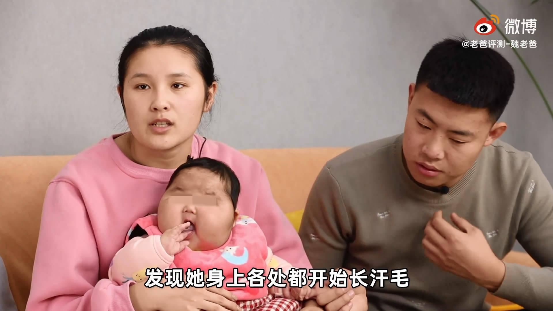 婴儿用抑菌霜成大头娃娃?医院检查一切正常,厂家称家长在炒作  第3张