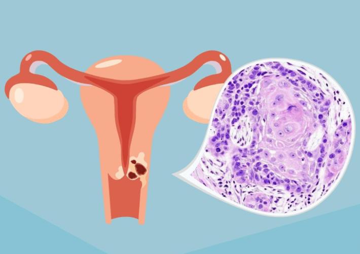 宫颈癌来临前的4大征兆,0岁还不知道,那可能真的晚了