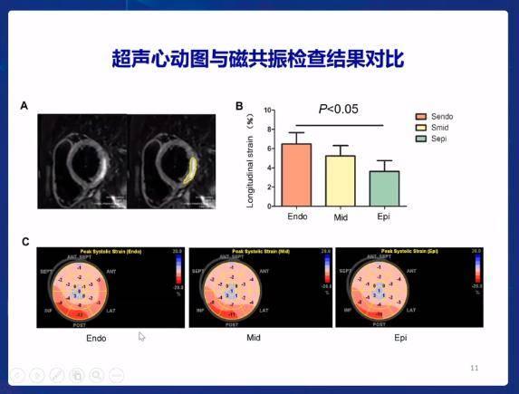 OCC2020|病死率降5%,救治成功率长稳95%,这个成人暴发性心肌炎救治方案我服了!