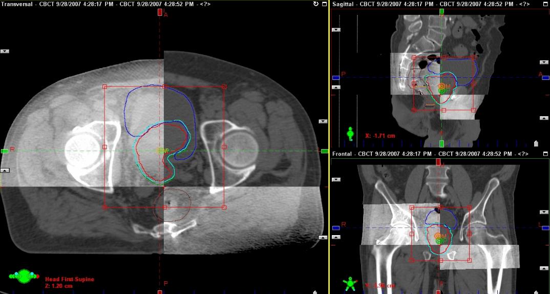 放射治疗+中医药,肿瘤患者的希望!我院放射治疗中心隆重开业!