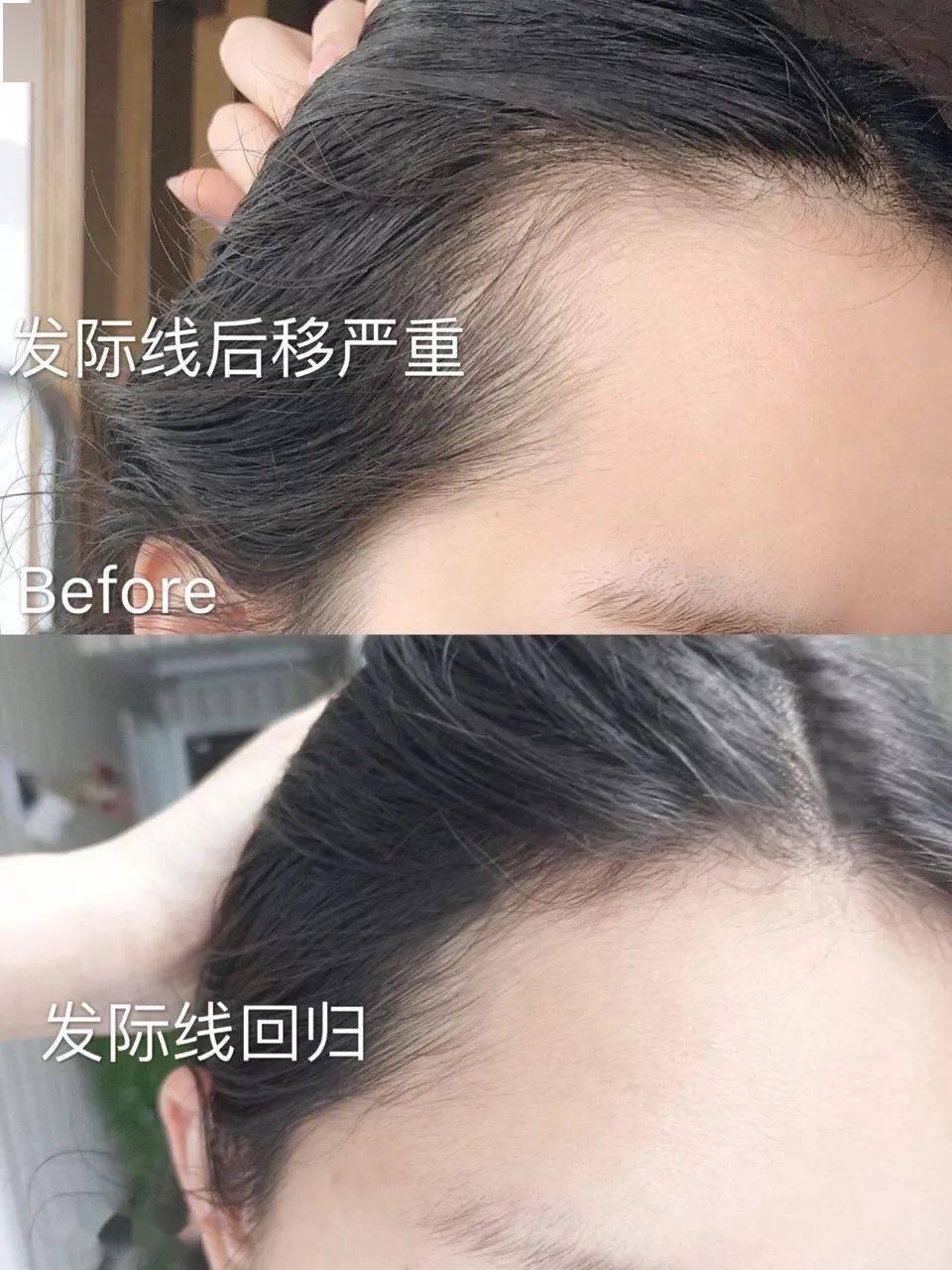 """获育发特征的""""秃头克星""""!每天抹它,头发真的长出来了"""