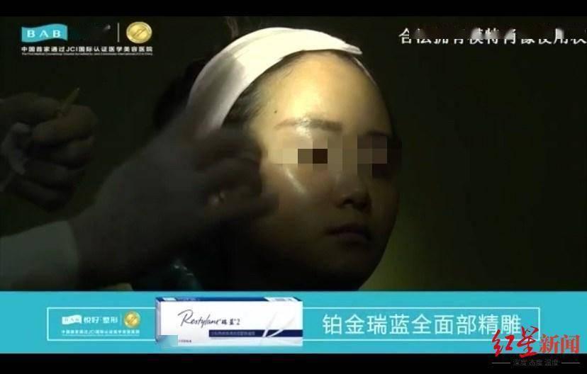 """恒达官网整形悲剧:""""成都赵丽颖""""没当成,鼻子还变形 院方:手术确实出了问题 (图9)"""