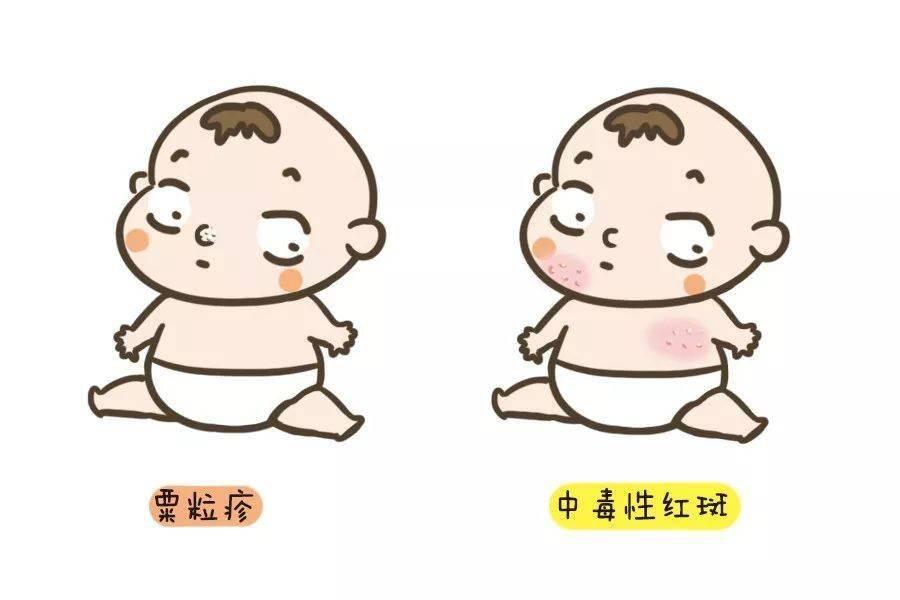 宝宝皮肤上的这些常见问题都不是病,不需要治疗!