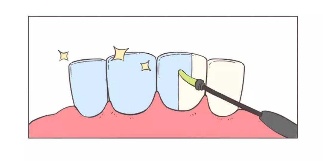 宝宝不到1岁,4颗牙全烂了!牙科医生痛心疾首,这种牙膏千万别给孩子用!  第19张