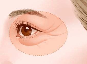 别再忽略眼睛健康了,治本护眼你需要它