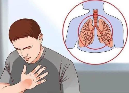肺癌患者每年增加近80万!这些早期信号要警惕!