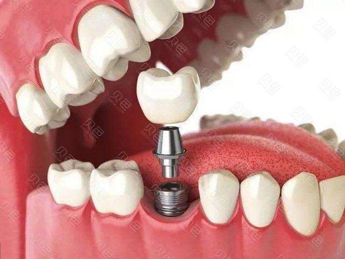 良心医生不建议种植牙是真的吗?