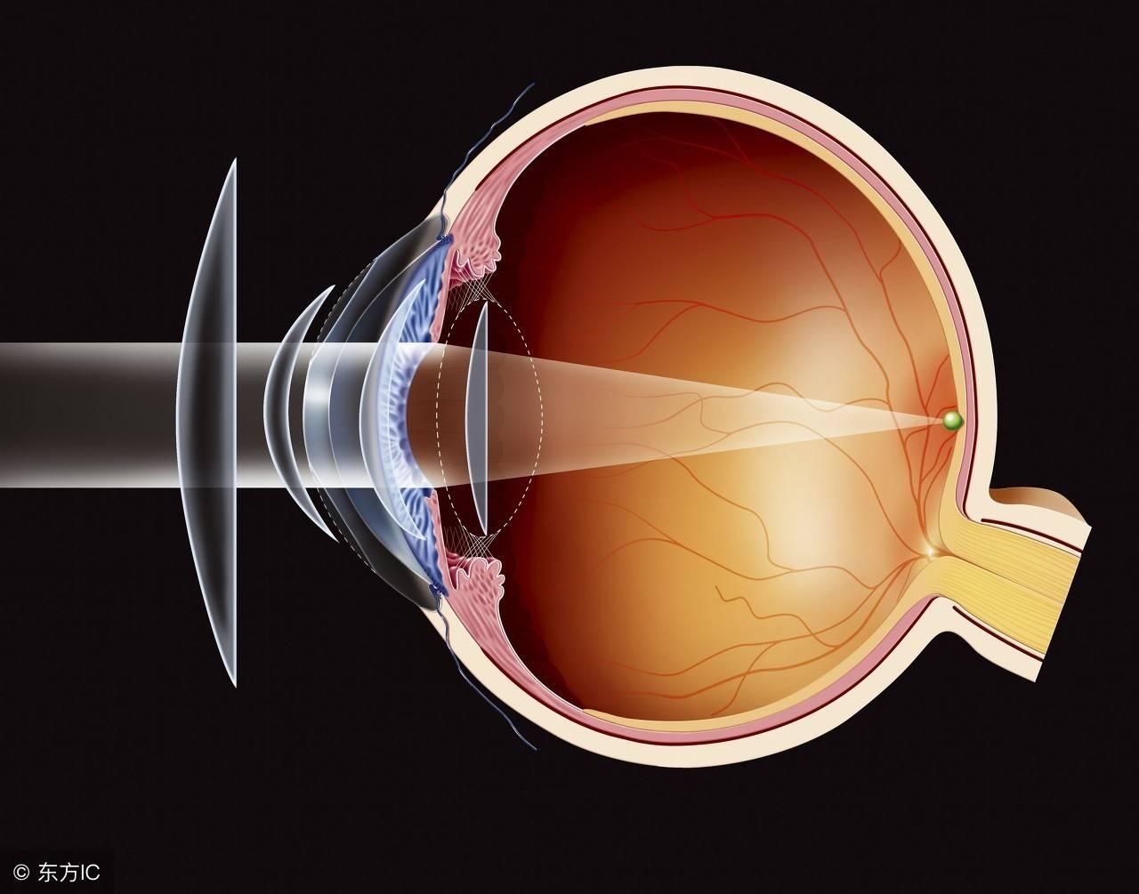 眼睛突出怎么使凹下去(突出的眼球如何矫正)插图
