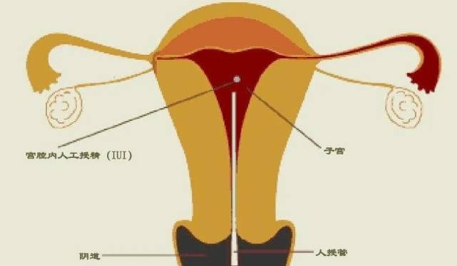 采用医疗辅助手段使不育夫妇妊娠的技术 什么是辅助生殖技术