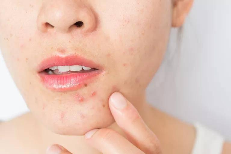 《国际皮肤病杂志》:十年研究证实,常吃这些食品易导致痤疮发作