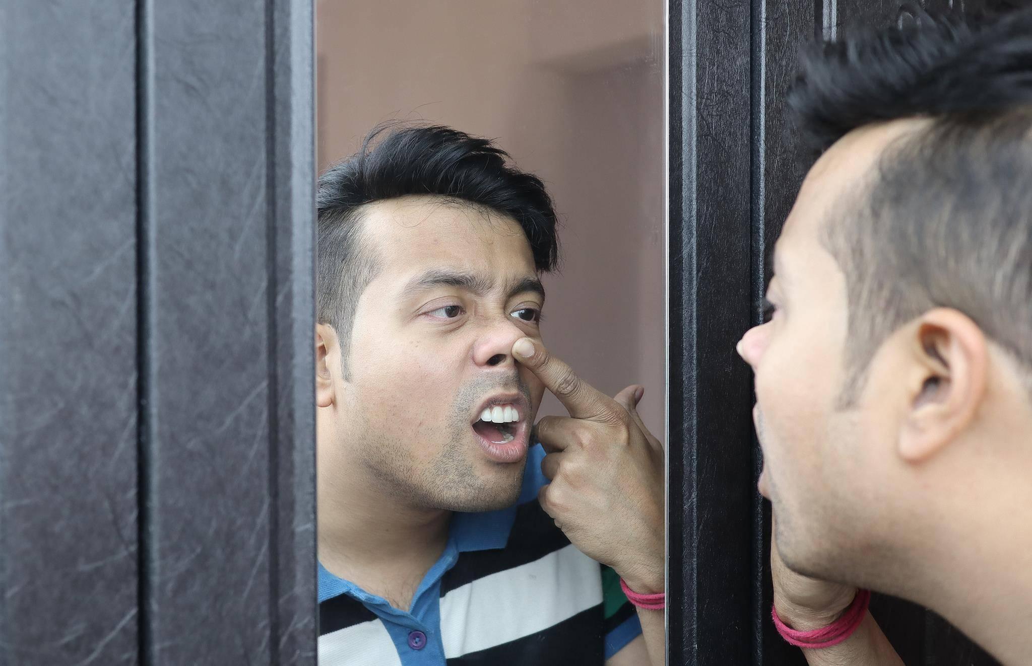 """为什么鼻毛总是会""""窜""""出来?鼻毛长得旺盛说明了什么?"""