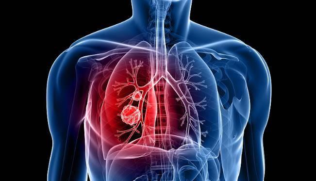 鼻子出現這3種表現,可能說明肺部已病變,學會2招,助你養好肺