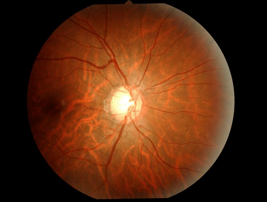 眼部血液循环_眼底一张照,眼病早知道!关注眼部健康,你要知道这些!_视力