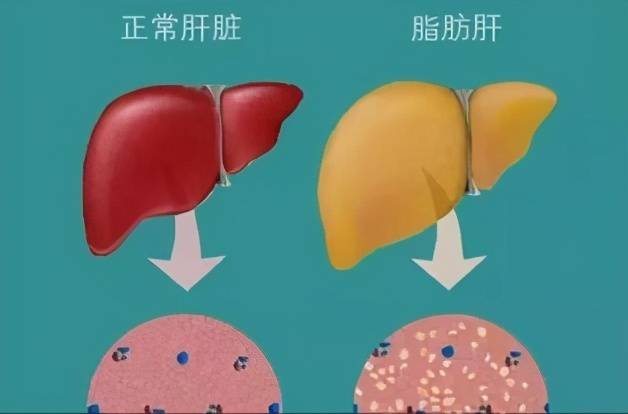 肚子上的肥肉最容易堆积,该如何减掉它呢?这几个动作练起来_腹部
