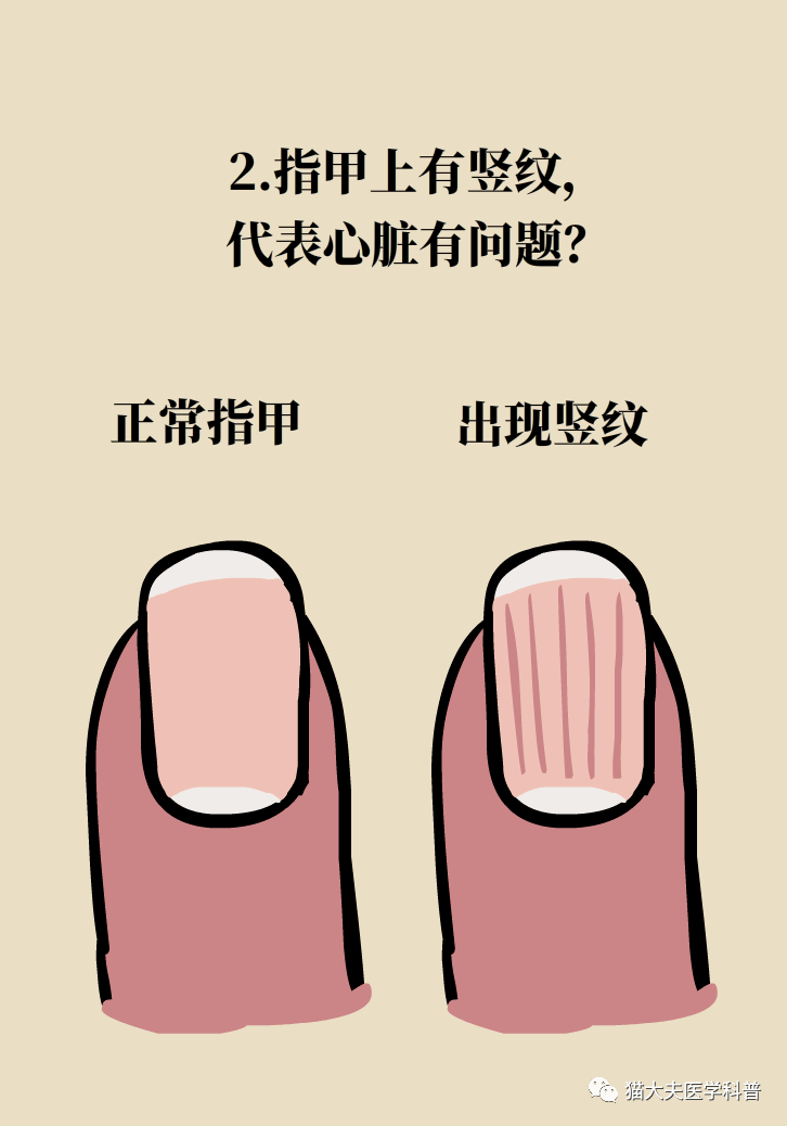 Is it true that the bigger and more crescent on the nail, the healthier it is?