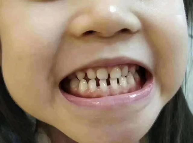 宝宝长出吓人的双排牙 只因宝妈准备饮食时 多做了一件事-家庭网