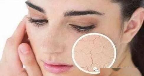 护肤小知识:怎么判断皮肤缺不缺水?看了就知道!
