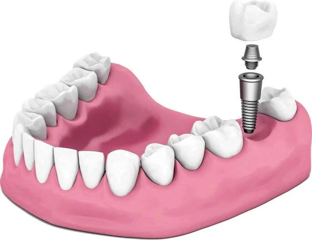 牙齿缺失问题大,却久了还能做种植牙吗?要比你想象中的更麻烦  牙齿掉了3年还能种吗
